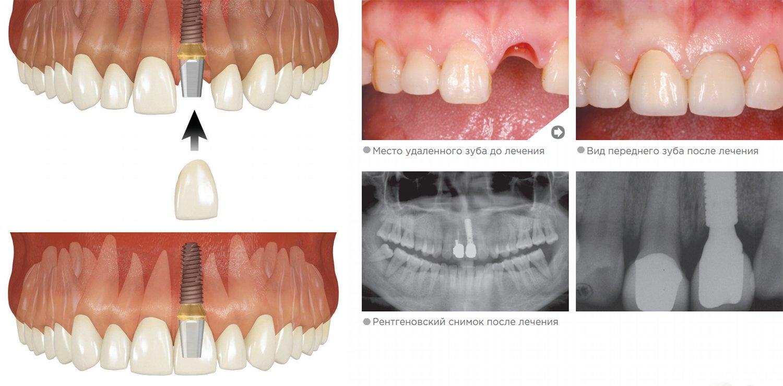 Передний зуб