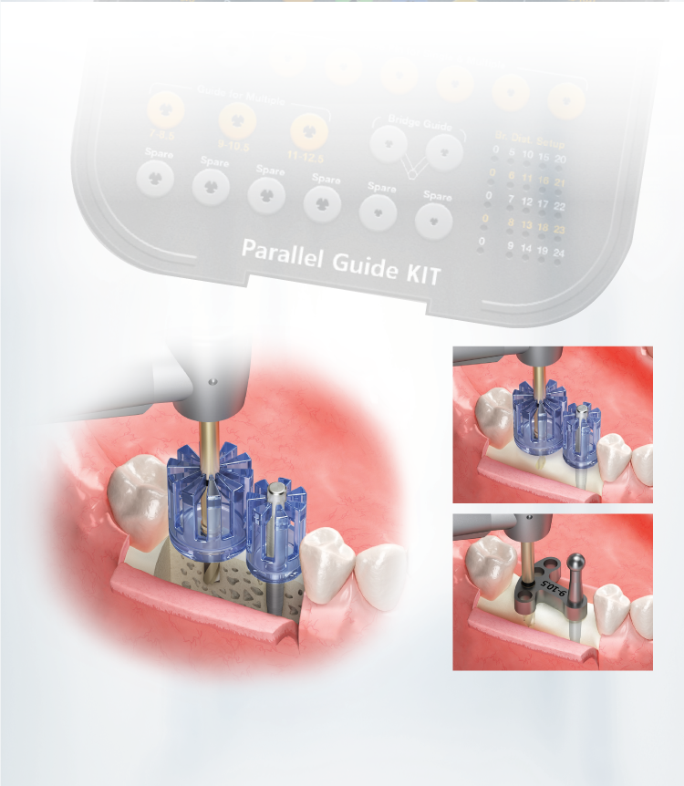 Parallel Guide Kit